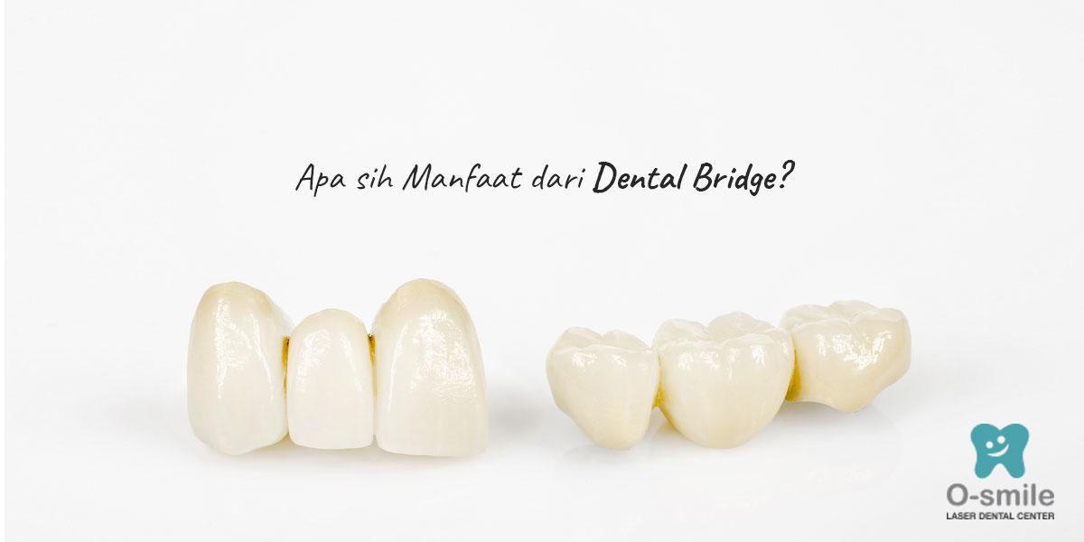 Apa Sih Manfaat dari Dental Bridge?
