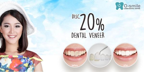 Diskon 20% Dental Veneer