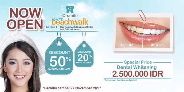 Promo Diskon Grand Opening O-Smile Laser Dental cabang Beachwalk Bali